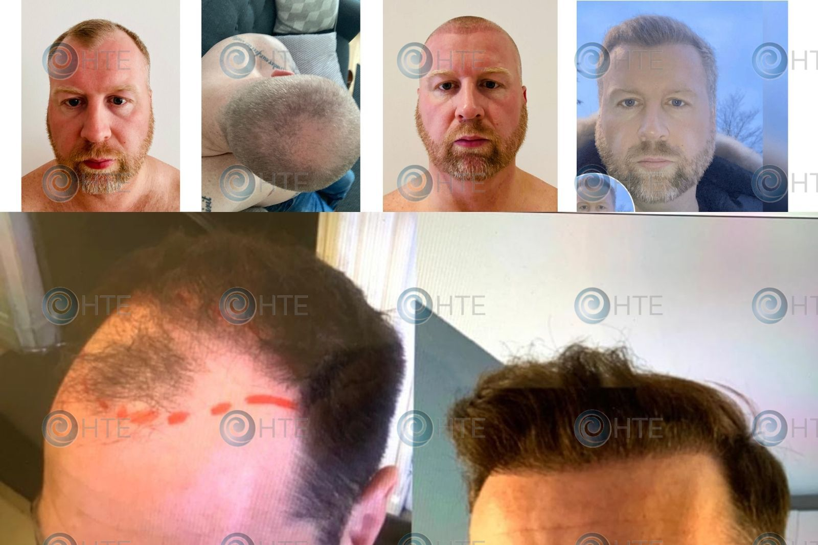 Hair-Transplant-Edinburgh-Clients-before-and-after