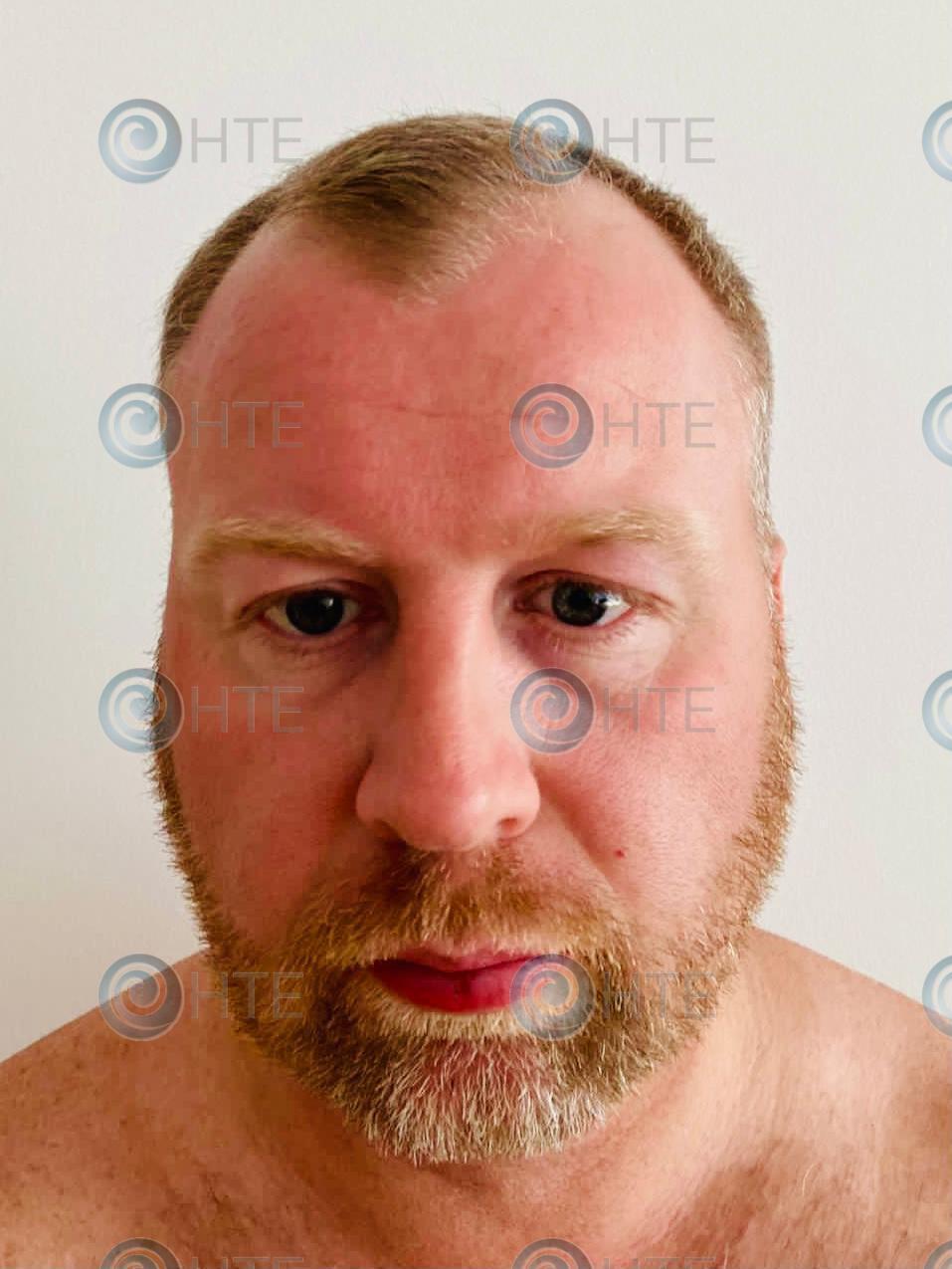 Hair-Transplant-Edinburgh-Clinic-Client-before