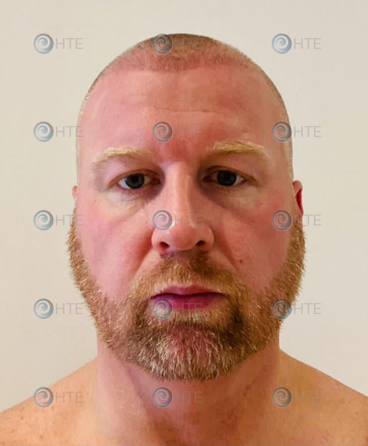 Hair Transplant Edinburgh Clinic Client during
