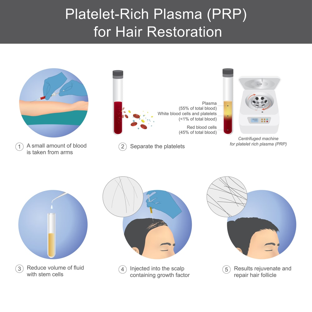 PRP therapy and process Manchester